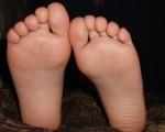 子どもの足の裏の皮がむける!原因は何なの!?